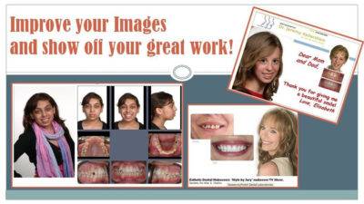 Τα μικρά μυστικά της της οδοντιατρικής φωτογραφίας
