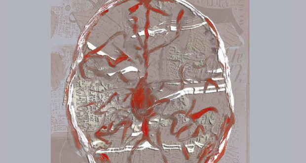 LINC – International Neurovascular Course – Multimodality Management of Intracranial and Spinal AVMs